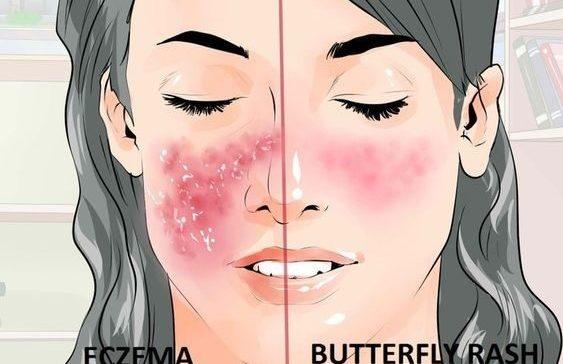 Skin rashes lupus